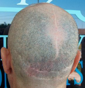 The Perils of Hair Transplants - Scalp Reduction - Mark Weston Hair
