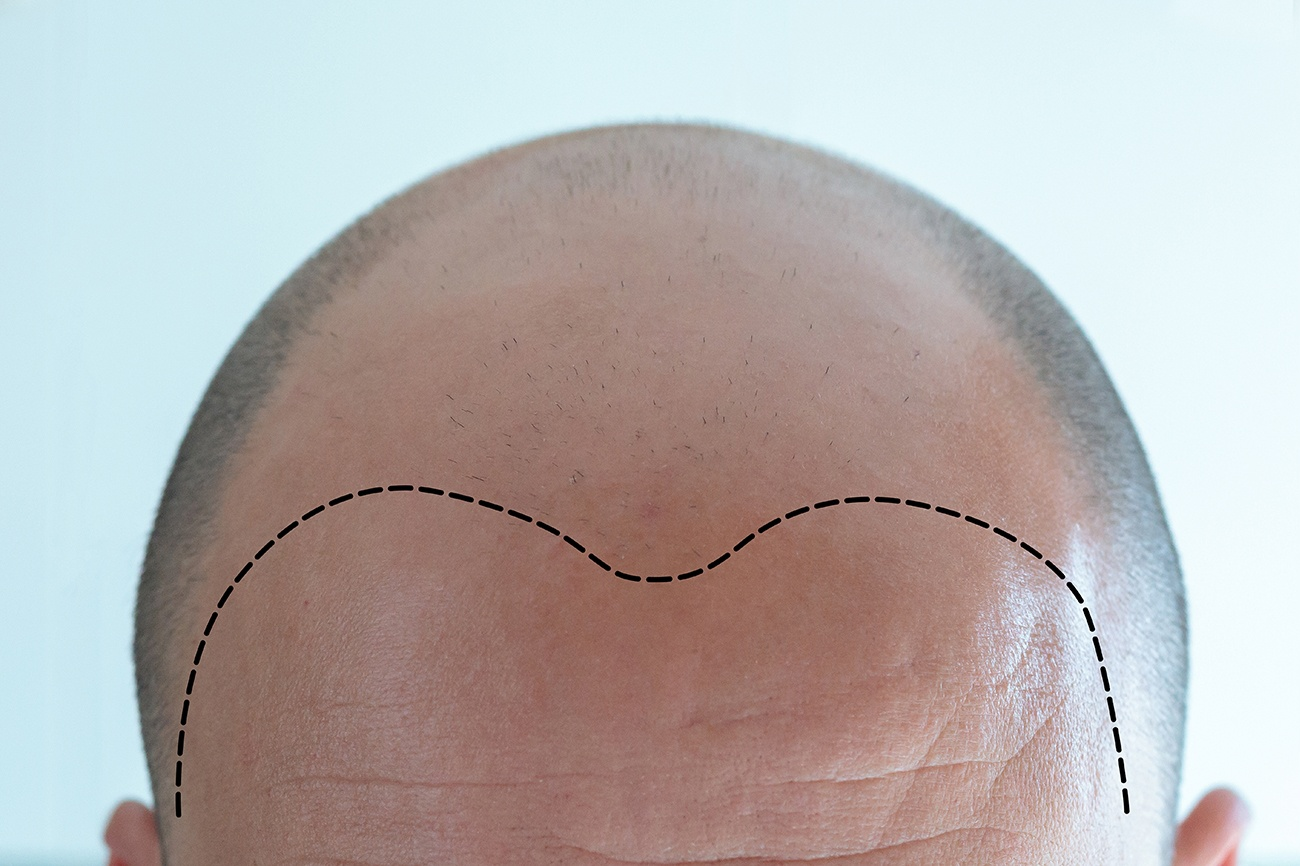 Featured Image for Scalp Micropigmentation Multi-Session Facts