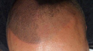 faded-multi-session-scalp-pigmentation