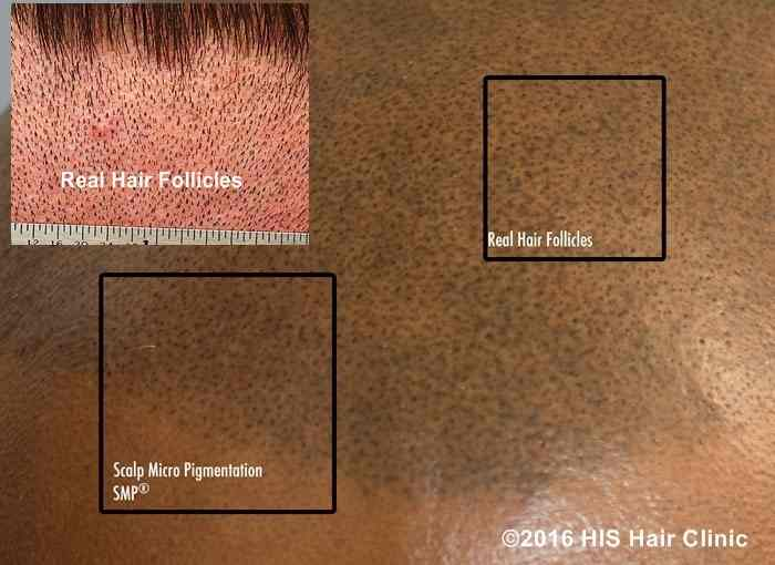 scalp micropigmentation multi session