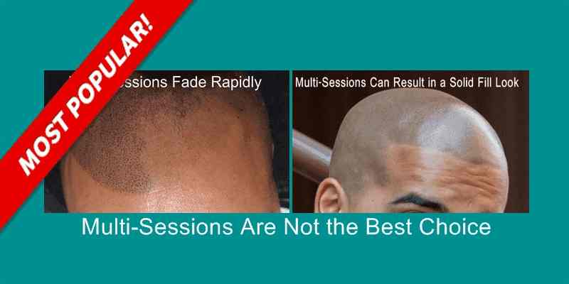 Scalp Micropigmentation Multi-Session Facts