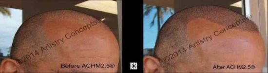 Scalp Micropigmentation Middle Eastern Archives