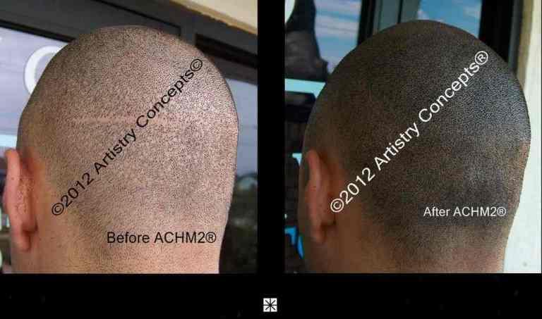 Scalp Micropigmentation Hair Transplant Repair Archive - Mark Weston Hair
