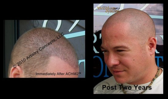 scalp-micropigmentation-graying