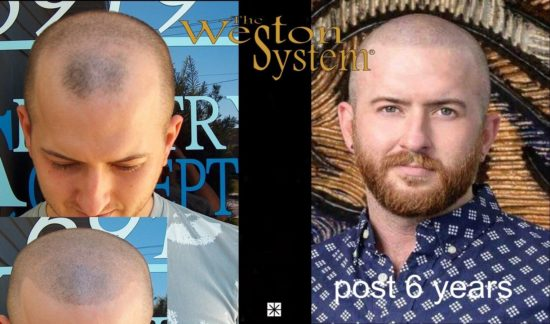 scalp-micropigmentation-weston-system