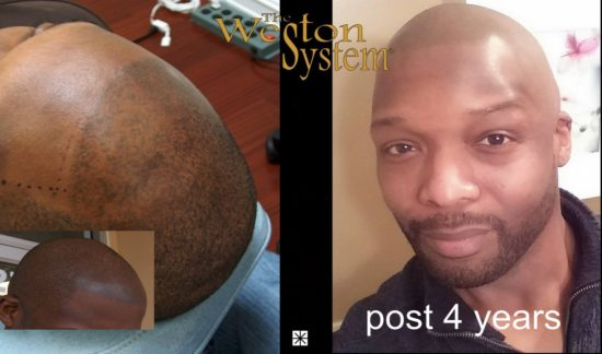 weston-system-scalp-pigmentation-post-4-years