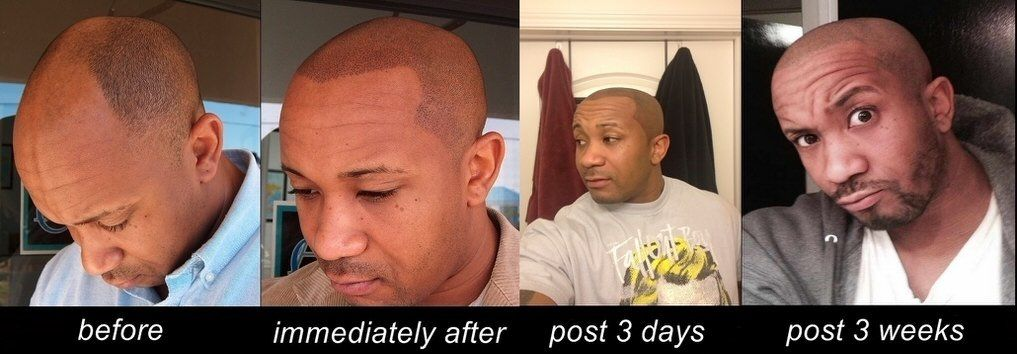Understanding The Scalp Micropigmentation Healing Process