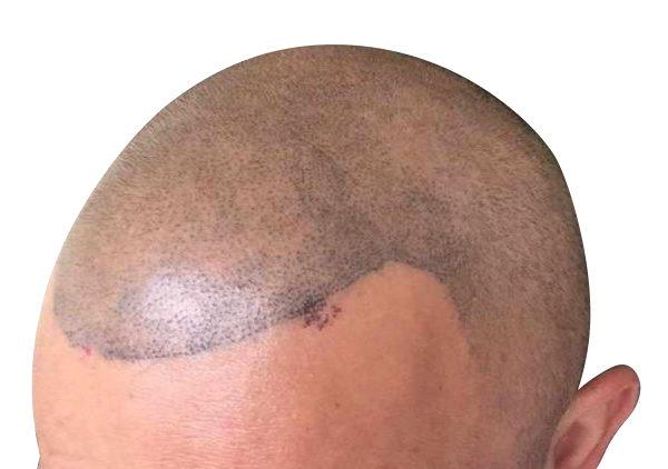 scalp-scarring
