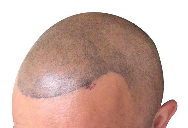 Poor Scalp Micropigmentation Results