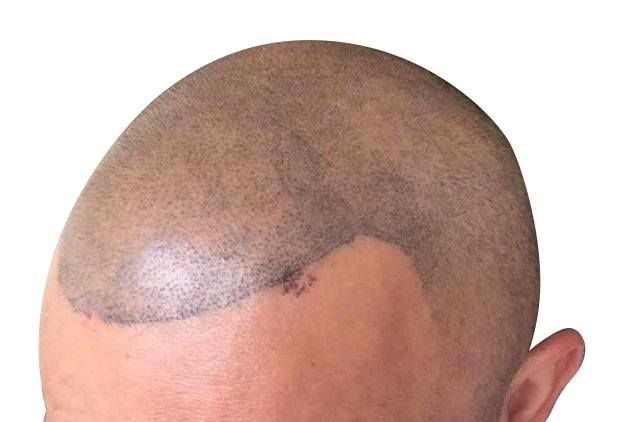 Featured Image for Poor Scalp Micropigmentation Results