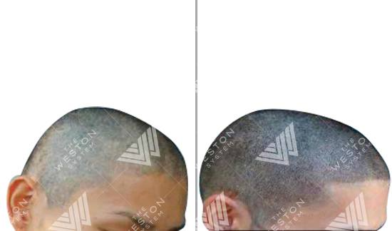 Asian Man Before and After Weston System Patented Scalp Micropigmentation