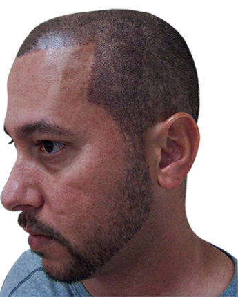 bald man after Scalp Micropigmentation