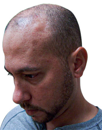 bald man before Scalp Micropigmentation