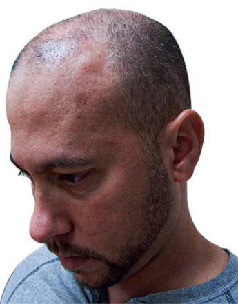 bald man before Scalp Micropigmentation
