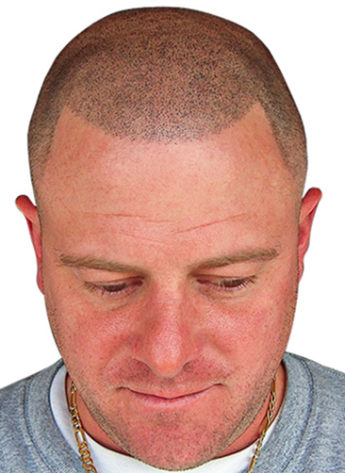 bald man after Scalp Micropigmentation