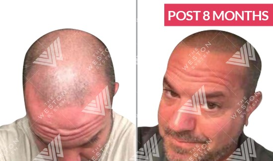 Man Before and After Weston System Patented Scalp Micropigmentation Long Term Results