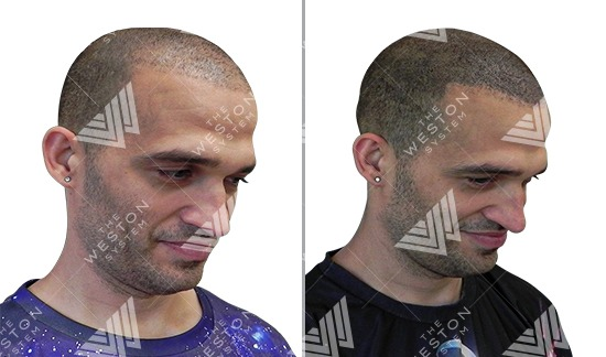 Man Before and After Weston System Patented Scalp Micropigmentation