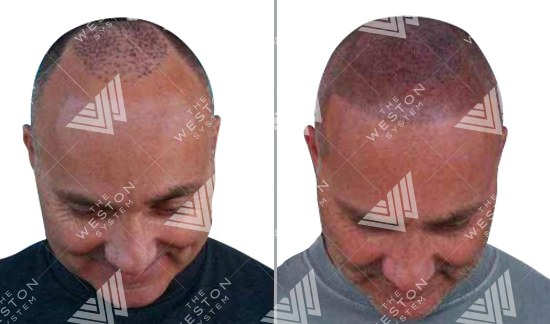 Man with Hair Transplant Before and After Weston System Patented Scalp Micropigmentation