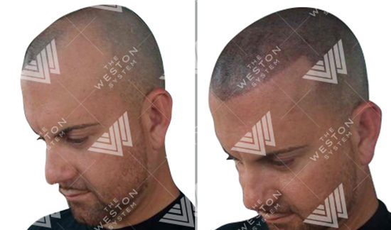 Caucasian Man Before and After Weston System Patented Scalp Micropigmentation