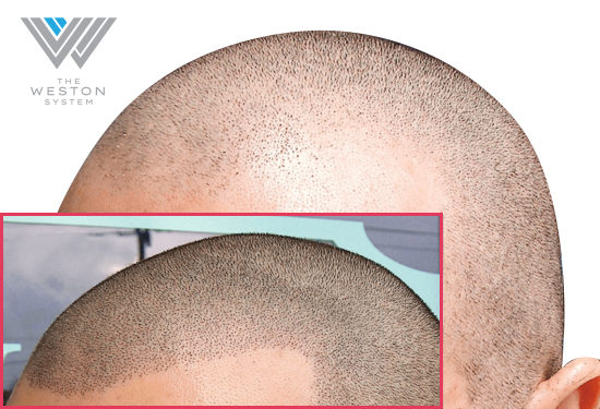 Weston System Hair Restoration