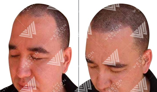 Hispanic Man Before and After Weston System Patented Scalp Micropigmentation