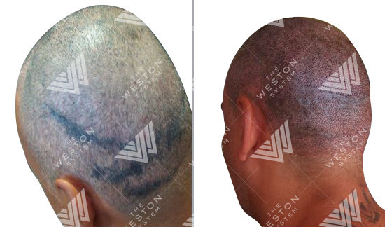 weston-center-scalp-pigmentation-correction