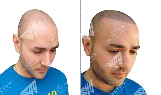 Middle Eastern Man Before and After Weston System Patented Scalp Micropigmentation
