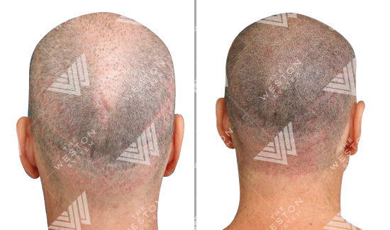 weston-system-scalp-reduction