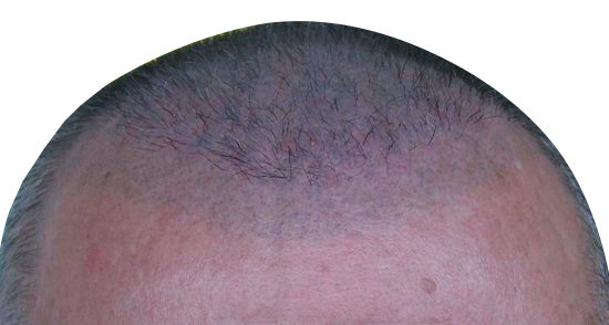 Blue Scalp Micropigmentation