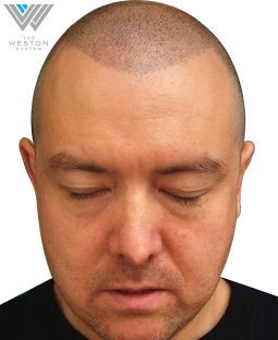 Patented Scalp Micropigmentation After