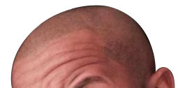 scalp-pigmentation-post-three-weeks