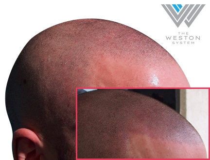 Scalp Micropigmentation Realistic Results