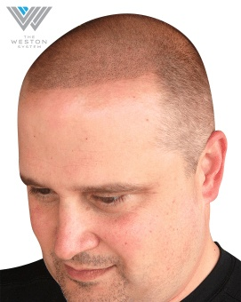 Man After Weston System Patented Scalp Micropigmentation Ash Blonde