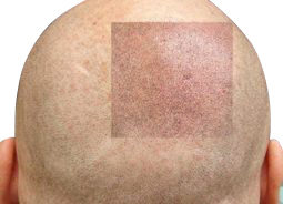 Patented Scalp Micropigmentation