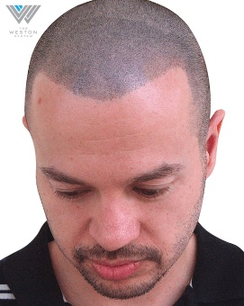 Man After Weston System Patented Scalp Micropigmentation True Black