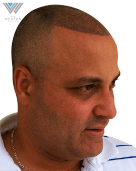 Man After Weston System Patented Scalp Micropigmentation Dark Brown Pigment
