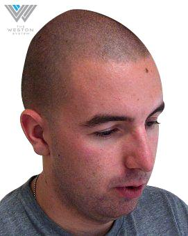 Man After Weston System Patented Scalp Micropigmentation Medium Brown Color