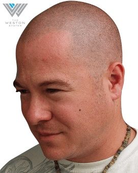 Man After Weston System Patented Scalp Micropigmentation Gray Color Hair Replication