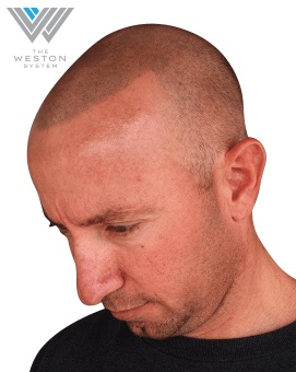 Man After Weston System Patented Scalp Micropigmentation light brown
