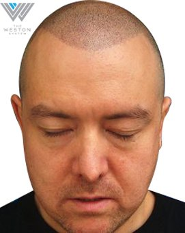 Man after Weston System Scalp Micropigmentation color Light Brown