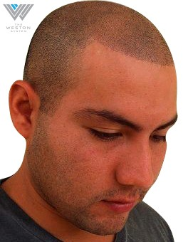 Man after Weston System Scalp Micropigmentation color Medium Brown