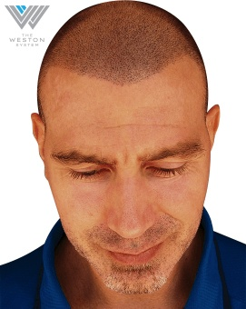Man After Weston System Patented Scalp Micropigmentation Reddish Brown Hair Color