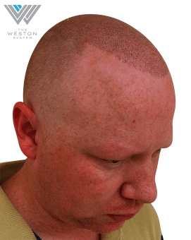 Man After Weston System Patented Scalp Micropigmentatio Red Strawberry Hair Color