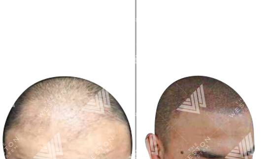Asian Man before and after Weston System Scalp Micropigmentation