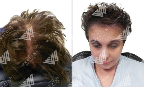 Photo of Women Before and After Weston System Patented Scalp Micropigmentation